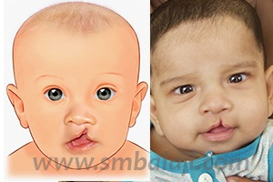 Incomplete Cleft Lip
