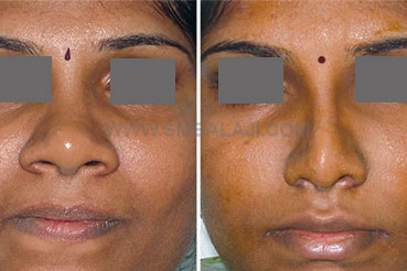 Nose Reduction Surgery Of A Very Broad Nose Chennai India Before After Picture