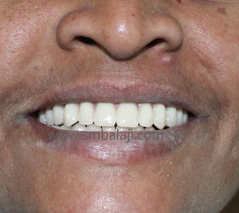 Patient Wearing Complete Removable Dentures