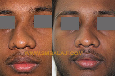 Surgical Correction Of A Crooked Nose Before After