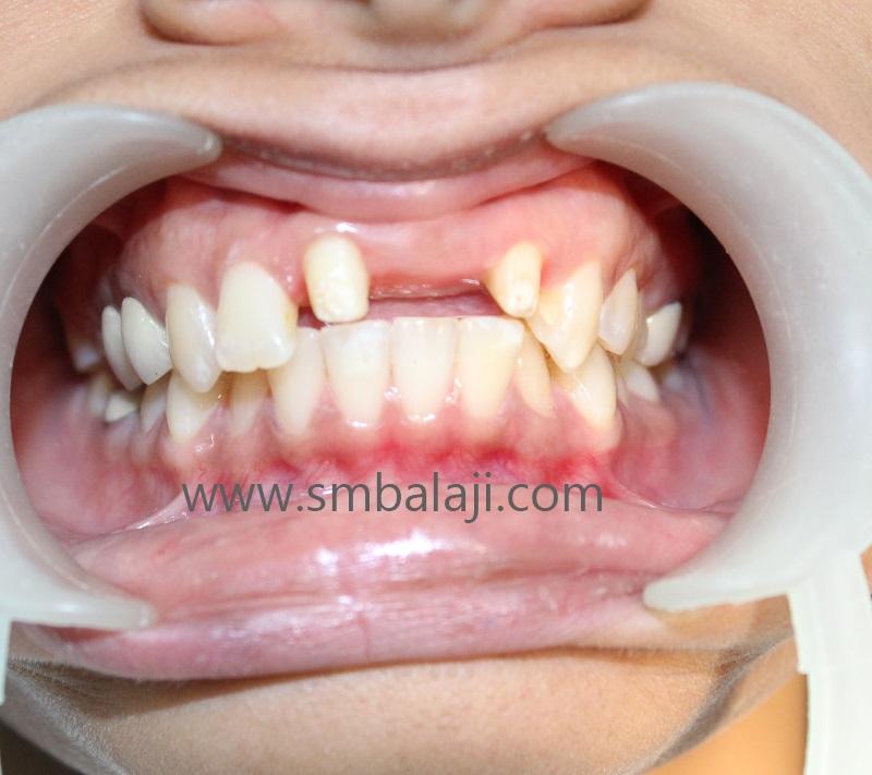 Teeth Adjoining Space Of Missing Upper Front Teeth Prepared