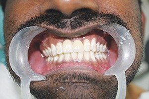 Dental Implant Chennai India