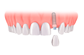 Dental Implant Chennai