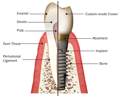 Implant Anatomy Basic Pic