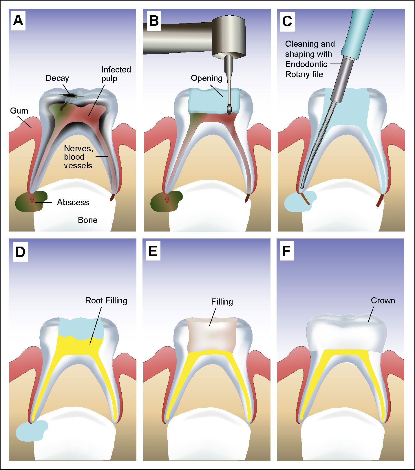 Root Canal Treatment For Child