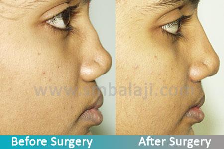 Flat Nose Repair Rhinoplasty Surgeon In India