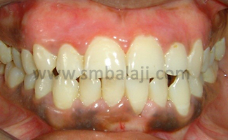 After Gum Treatment