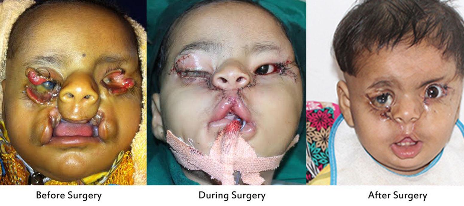 Best Facial Reconstructive Surgeon in India