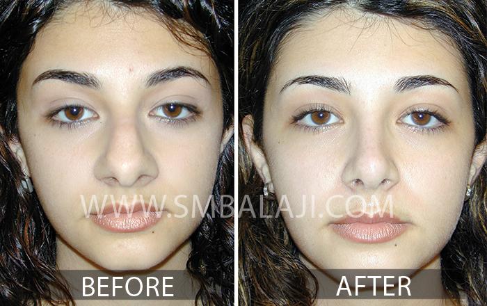 Rhinoplasty Surgery Cosmetic
